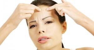 3 Hal Wajib Diingat Saat Memilih Skincare untuk Kulit Berjerawat