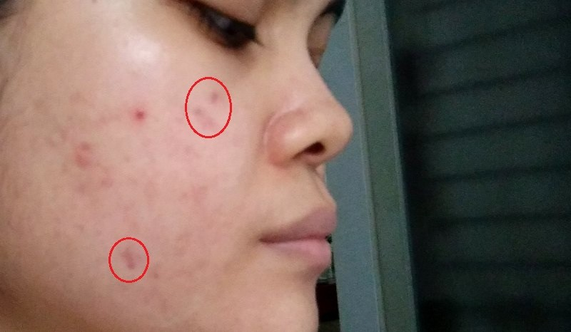post-inflammatory-hyperpigmentation-PIH-bekas-jerawat-featured