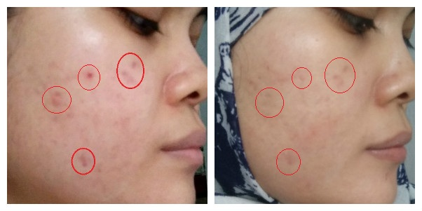 cara-pemakaian-tretinoin-hasil-before-after-featured