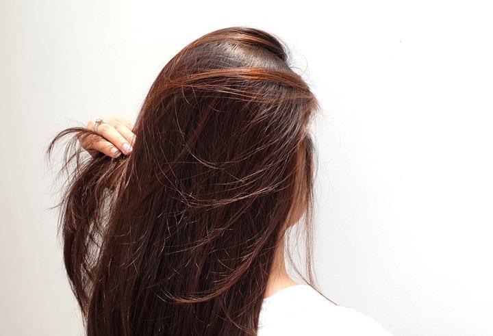 penyebab-rambut-rontok-2