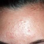 Produk Skincare Ini Rawan Bikin Bruntusan