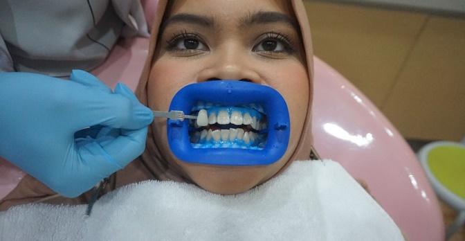 Nyobain Memutihkan Gigi Di Dokter Female Daily