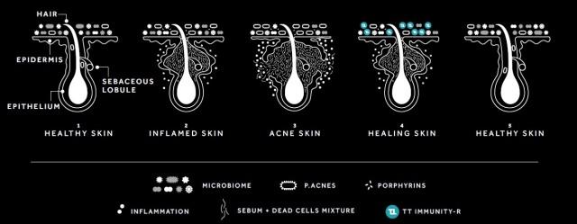 2 Produk Skincare Drugstore untuk Mengatasi Jerawat