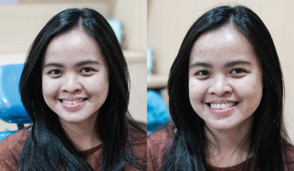 Review Memutihkan Gigi Di Melisa Dental Care Female Daily