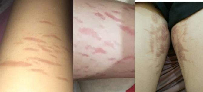 Steroid Menjadi Bahan Dasar Krim Pemutih yang Merusak Kulit-2